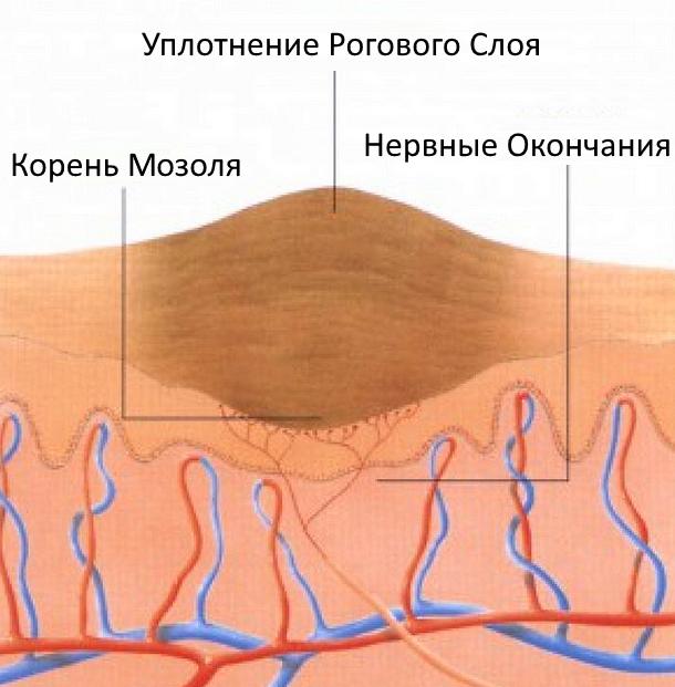 Как устроен мозоль