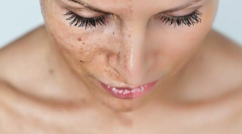 Гиперпигментация кожи - причины и виды