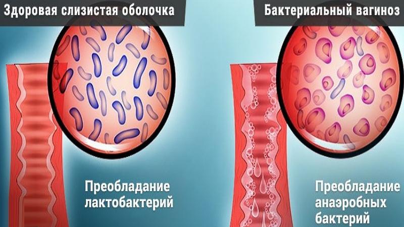 Нет хороших бактерии во влагалище