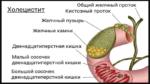Холецистит симптомы и лечение