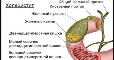 Холецистит развитие болезни и лечение