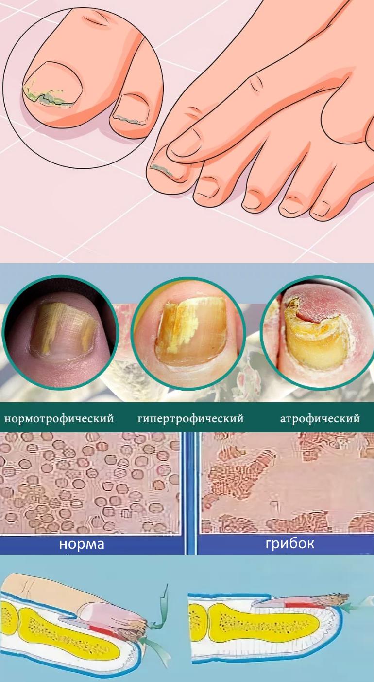 Грибок ногтей на ногах и руках - как происходит развитие
